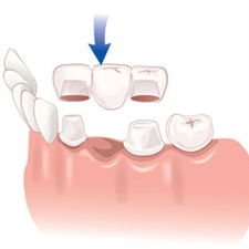 Alpharetta Dentists for Crowns/Bridges