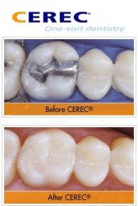 Marietta GA CEREC Dentistry
