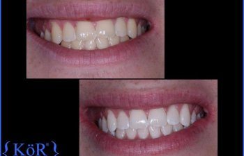 Patient Before & After KöR Whitening