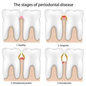 Alpharetta Periodontal Disease Treatment
