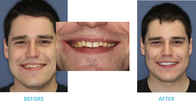 Full Mouth Reconstruction utilizing a K7 - Before and After