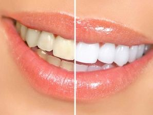 Whiter Teeth for a Stunning Smile