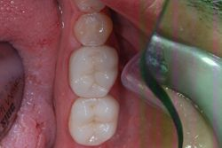 After Esthetic Restorations