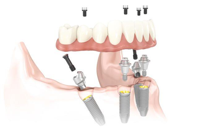 how dental implants work