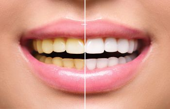 Teeth Whitening Before and After Alpharetta GA