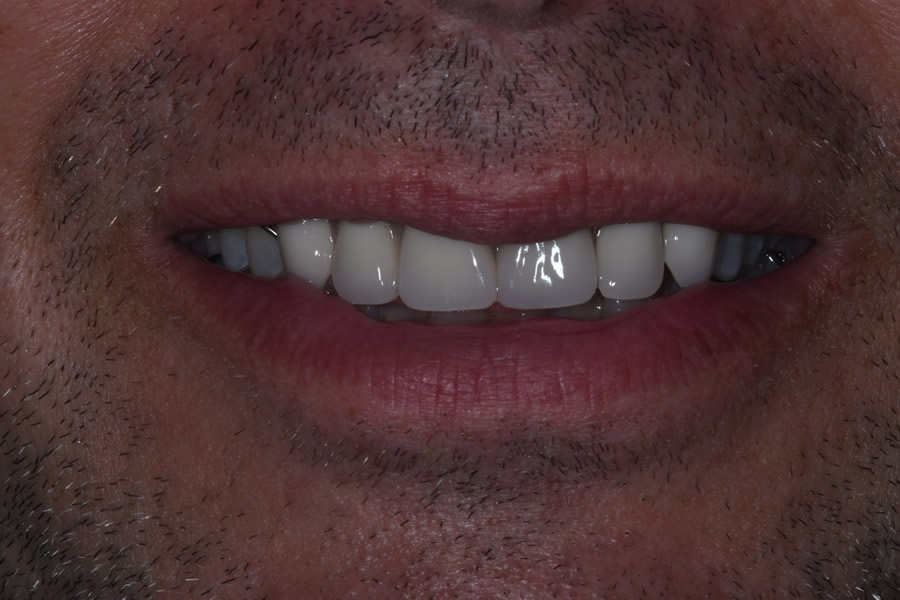 Final restorations with implants all completed