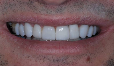 Equal white teeth after reconstruction