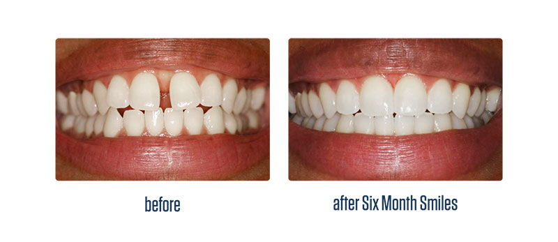 Crabapple Six month smiles patient - teeth before and after treatment