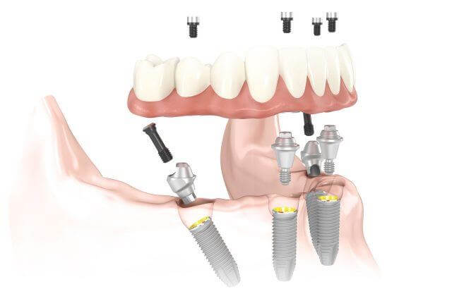how All-on-4 dental implants work