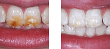 Crabapple Dental patient before and after Kor Teeth Whitening