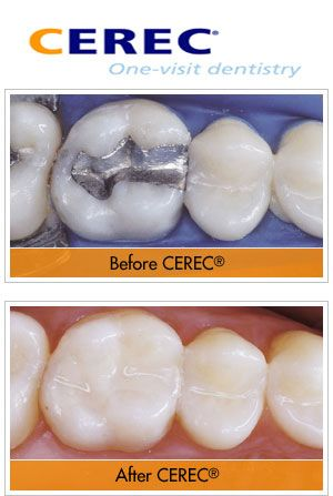 Cerec one-visit dentistry : teeth Before and After Cerec cosmetic treatment