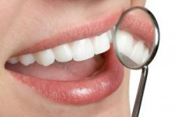 Crabapple Dental Cleanings