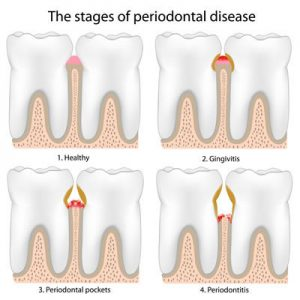 The stages of periodontal disease