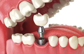 Dental Implants Alpharetta, GA